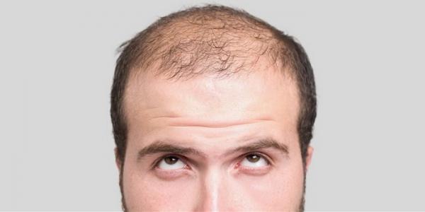 ریزش مو و 7 روش درمان طبیعی آن در منزل